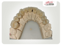 Provizorii dentare