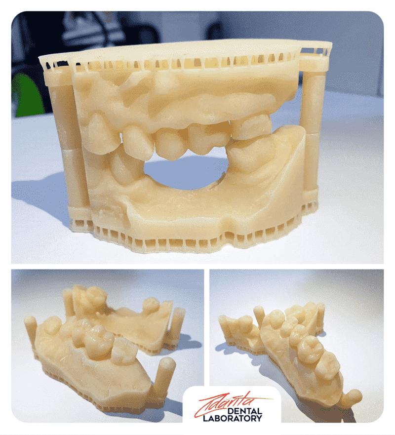 Lucrare zirconiu și modele printate 3D